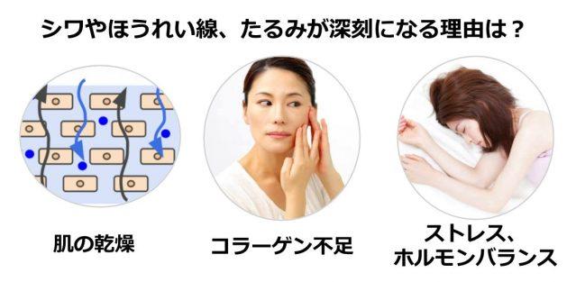 肌老化の原因